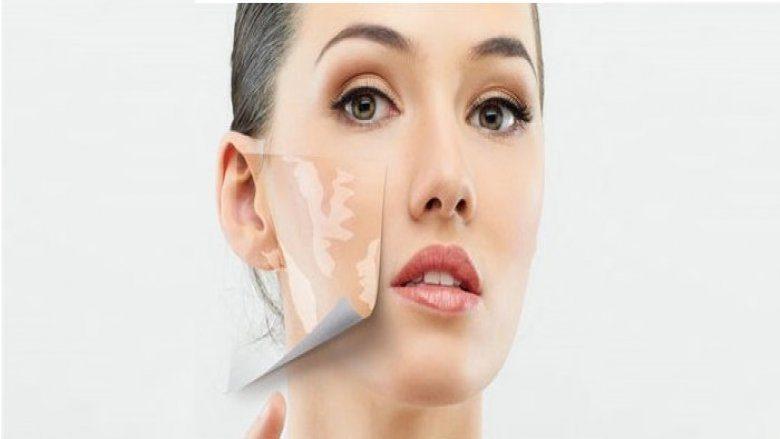 Vitiligo Stem Cell Treatment In Delhi India Stemcellcareindia